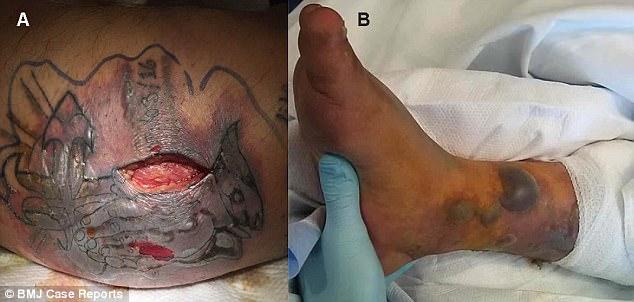 tatuaggio fatale
