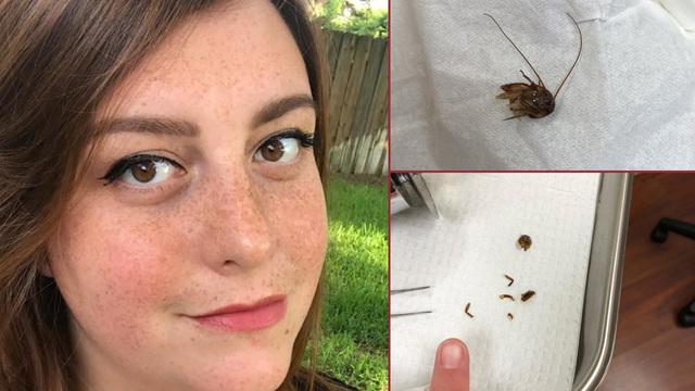 Vive per 9 giorni con uno scarafaggio conficcato nell'orecchio