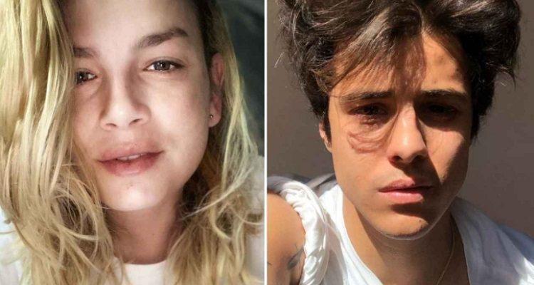 Emma Marrone e Michele Merlo dedica